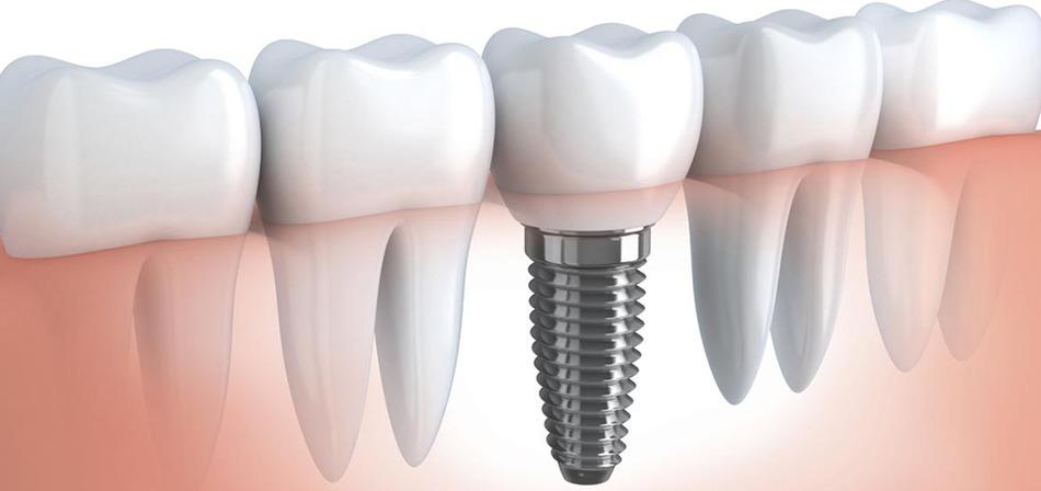 Протезирование зубов Симферополь