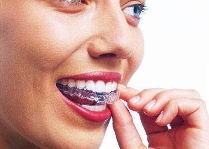 Стоматологическая клиника Сааб: Отбеливание зубов дома