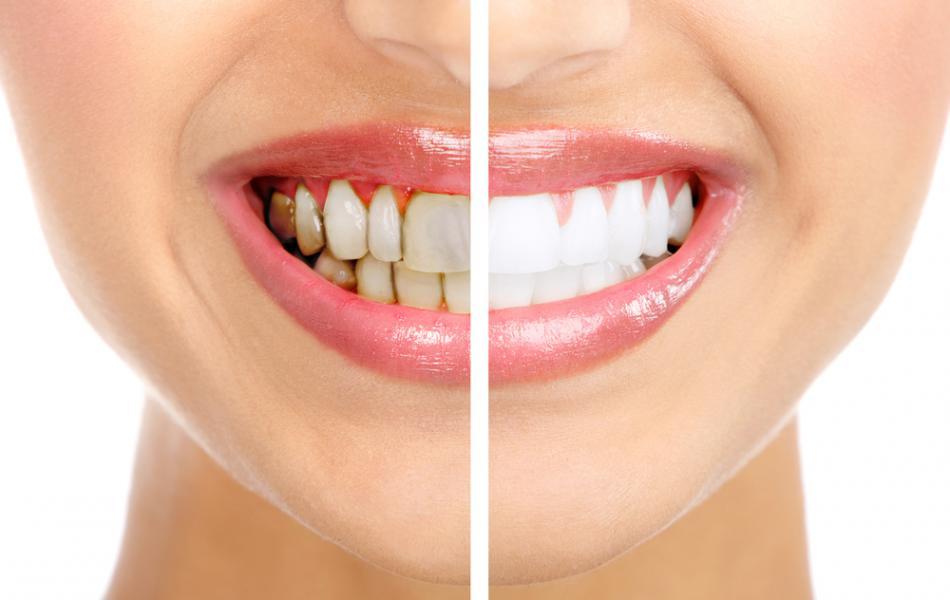 Зубной налёт - враг, которого мы недооцениваем